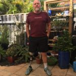 Robert, aged 67, stands in his garden in shorts with his prosthetic leg visible.